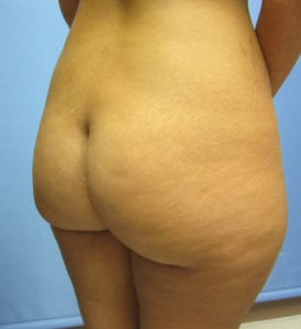 Brazilian Butt Lift Before and After Pictures Irvine, CA