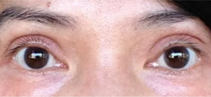 Asian Blepharoplasty Before and After Pictures Irvine, CA