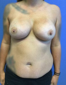 Breast Augmentation Before and After Pictures Irvine, CA