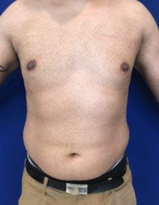 Gynecomastia Before and After Pictures Irvine, CA