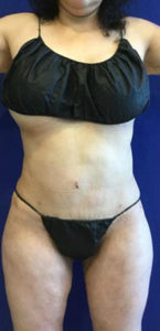 Liposuction Before and After Pictures Irvine, CA
