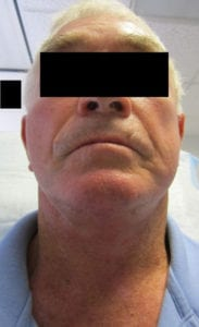 Neck Lift Before and After Pictures Irvine, CA