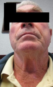 Necka Lift Before and After Pictures Irvine, CA